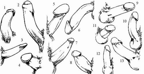 виды и формы половых членов