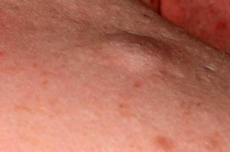 Уплотнение под кожей полового члена