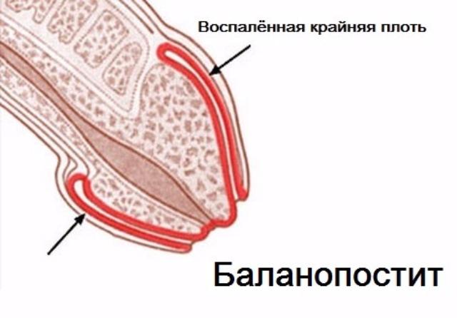 опухла крайняя плоть