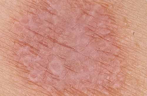 почему шелушится кожа на члене